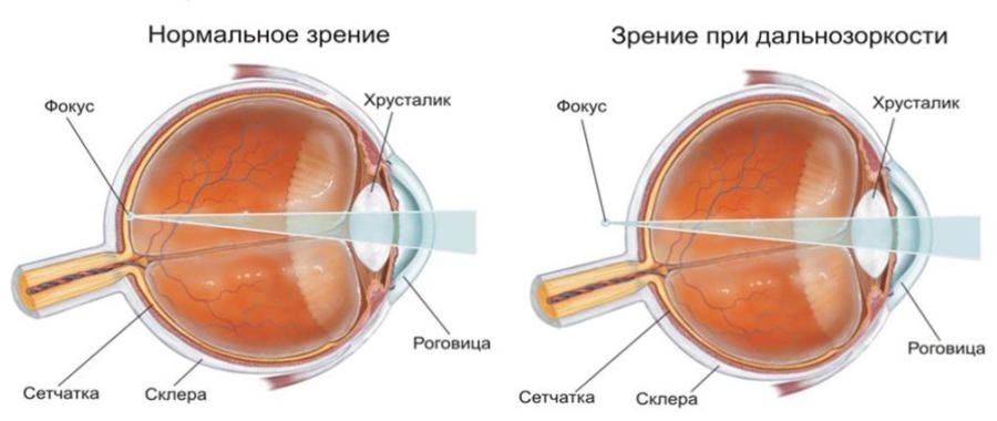 Строение глаза при дальнозоркости