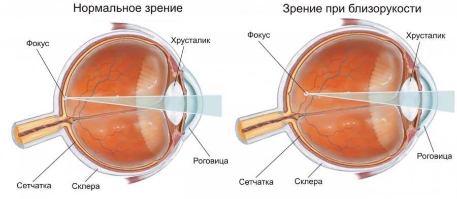 Строение глаза при близорукости
