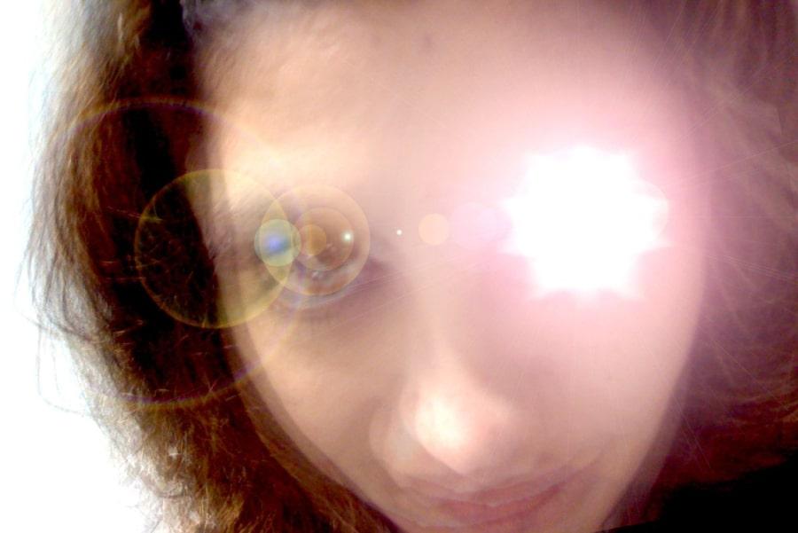 Глазная мигрень 2
